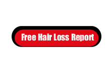 Free Hair Loss Report